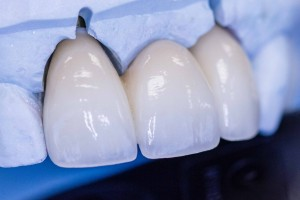 Implant Supported Dental Bridges