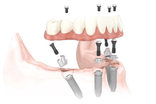All on Four Dental Implants